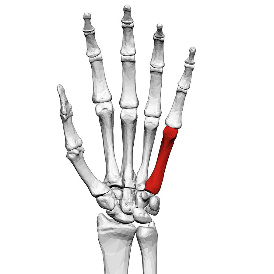 Image of hand bones with fractured bone highlighted in red