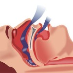 Choking & Airway Obstructions: What to do?