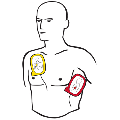 Image of aed electrode placement instructions