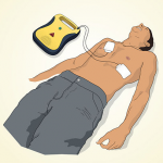 Basic Steps for Using an AED