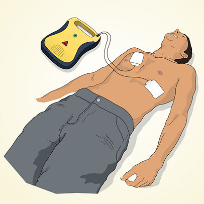 Graphic of male with AED electrode pads on his chest