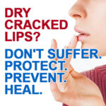 Dry, Chapped Winter Lips?
